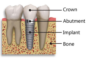 Implant Diagram - Crown, Abutment, 					  Implant, Bone